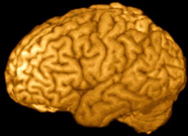 image-sahin_MRI_brain