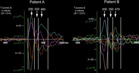 Reliability of the three electrophysiological components of grammatical inflection