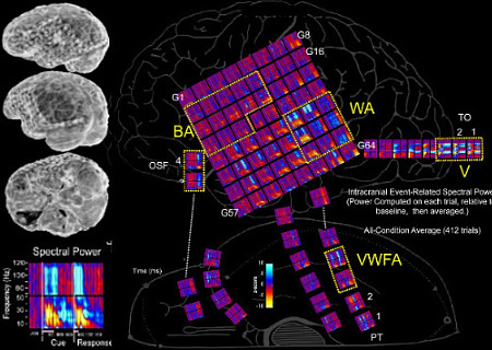 Placement of electrodes across cortex and averaged spectral power from each