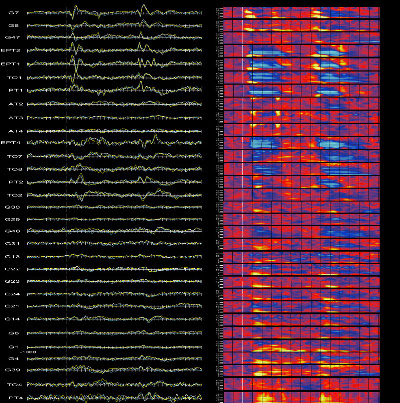 ICE data from multiple electrodes in one patient&#8217;s brain