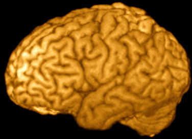 Reconstructed MRI Showing 3D Brain Surface