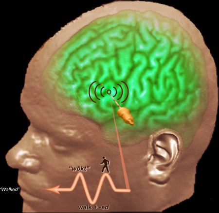 Intrancranial Electrophysiology (ICE): Three-Stage Response in Broca's area